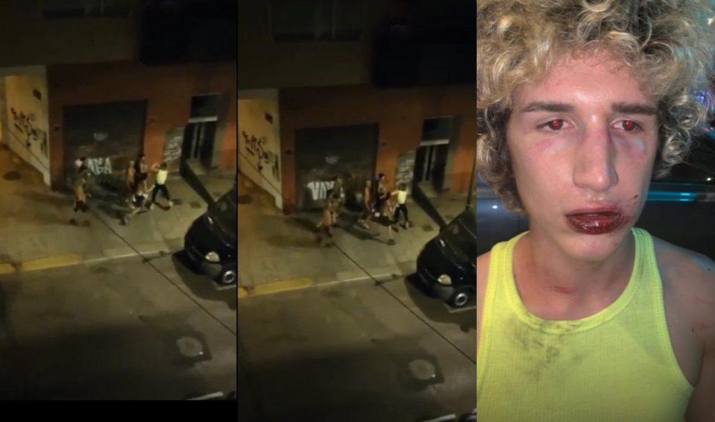 Valencia, pestaggio omofobo da un gruppo ai danni di un italiano