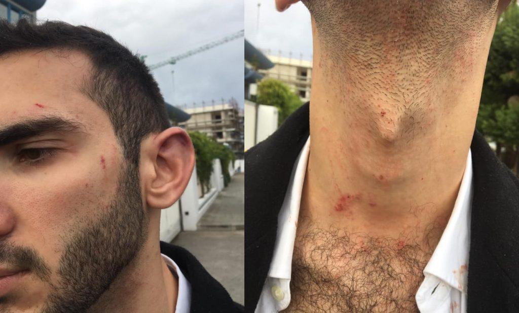 Aggressione omofoba sul posto di lavoro: «Ric**ione, ti spacco la faccia»
