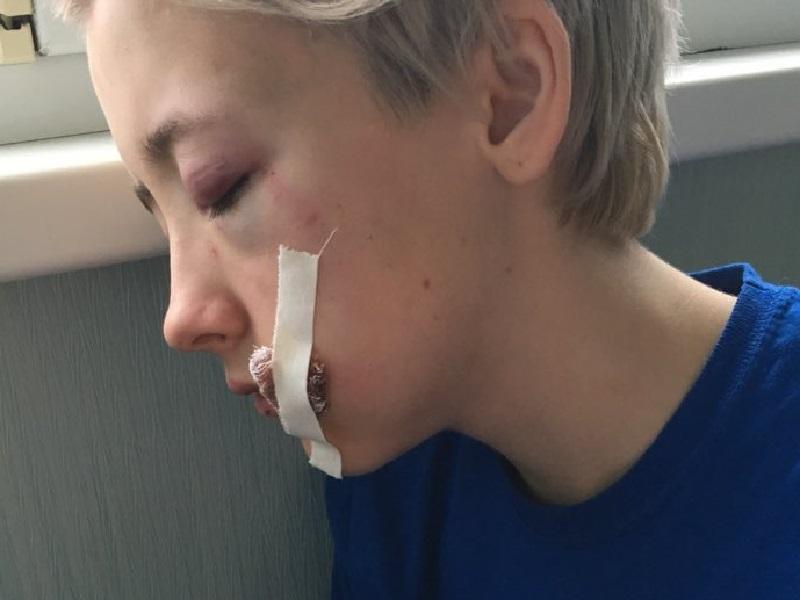 Russia, ragazza lesbica picchiata da 7 uomini dopo essere stata insultata