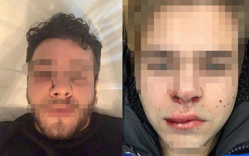 Zurigo, notte di capodanno al pronto soccorso per due ragazzi gay aggrediti