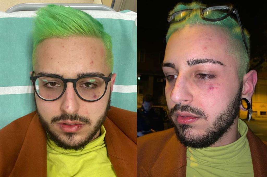 «Aggredito da 4 persone fuori da una discoteca LGBT perché calabrese»