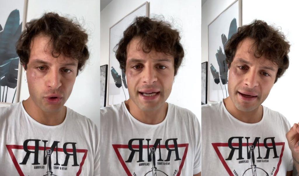 """L'influencer Iconize aggredito da tre ragazzi: «uno di loro mi ha urlato """"fr**io""""»"""