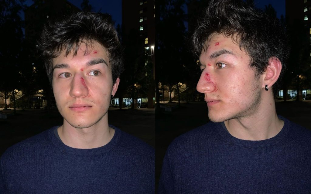 Milano, ventenne risponde agli insulti omofobi e viene aggredito