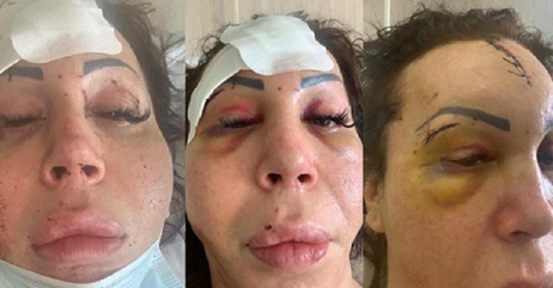Napoli, donna trans aggredita nel suo condominio e discriminata in ospedale