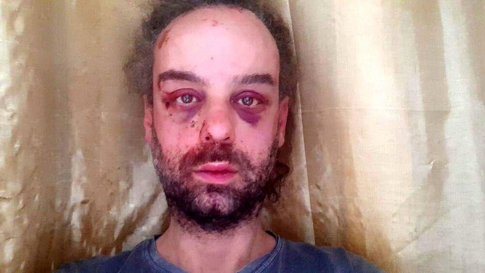 L'attivista LGBT+ Antonio Parisi pestato a sangue a Trieste