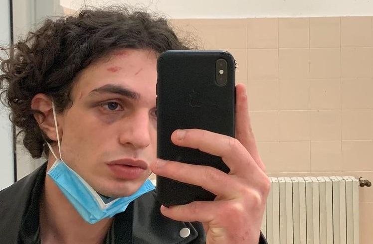 Vicenza, 20enne aggredito dal branco: polizia indaga su movente omofobo